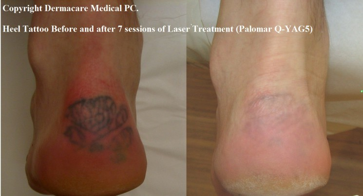 Heel Tattoo Before And After Laser Removal
