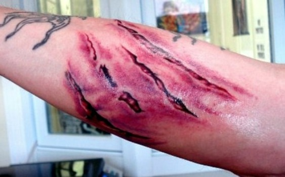 3D Rip Skin Scratch Tattoo On Arm photo - 1
